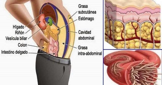 cum să elimini tumora grasă)