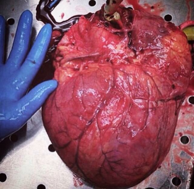 "medicinethings: "" Cardiomegalia ; cardiomegaly "" | enfermedad ..."