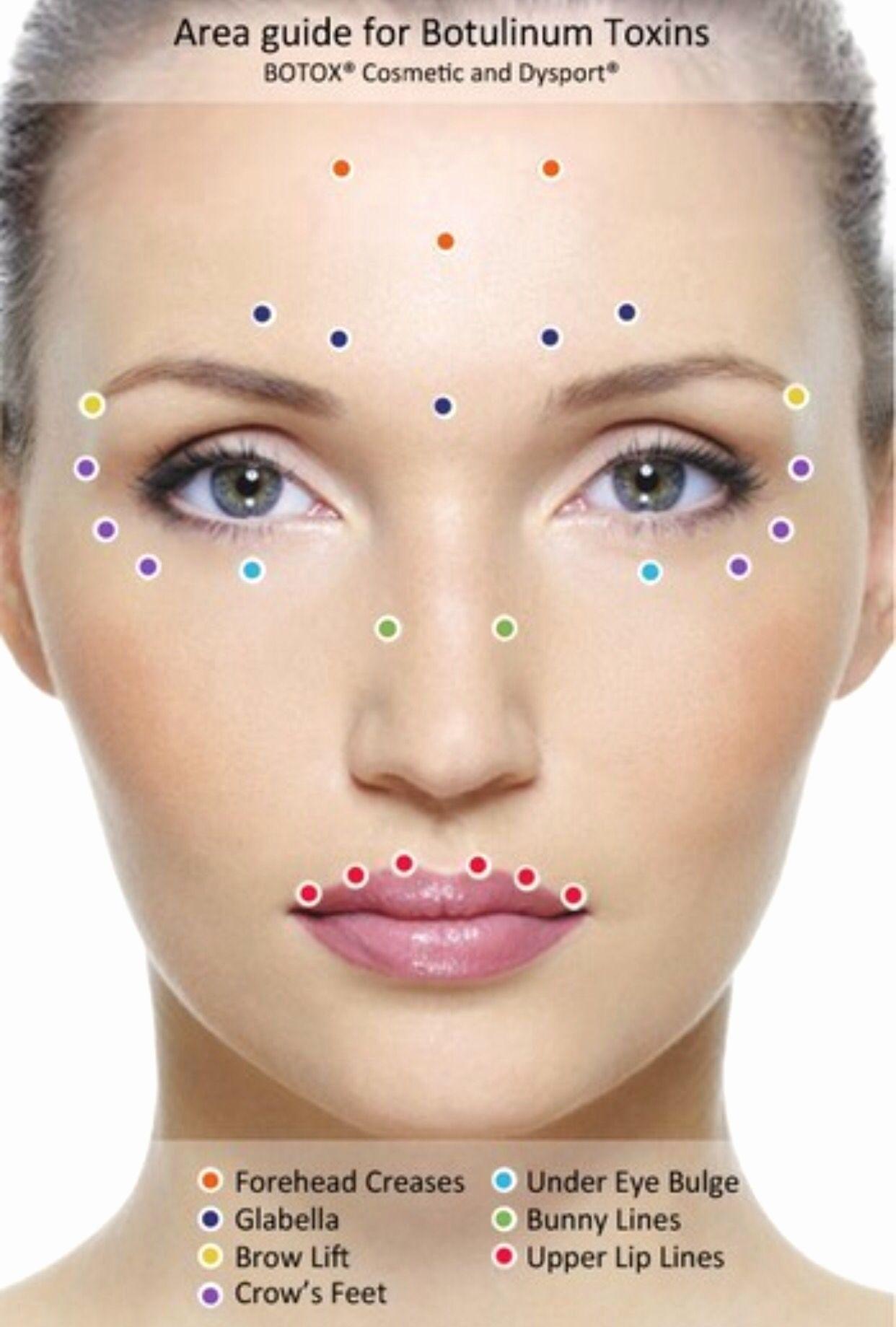 botox eye diagram wiring diagram dash diy eyebrow shaping eyebrow lift diagram #7