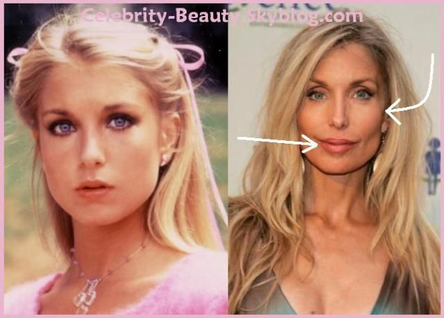 Celebrity FaceLift: Before N After