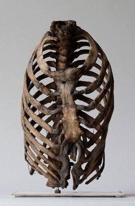 Corset Damage To A Ribcage 19th Century London Hunterian