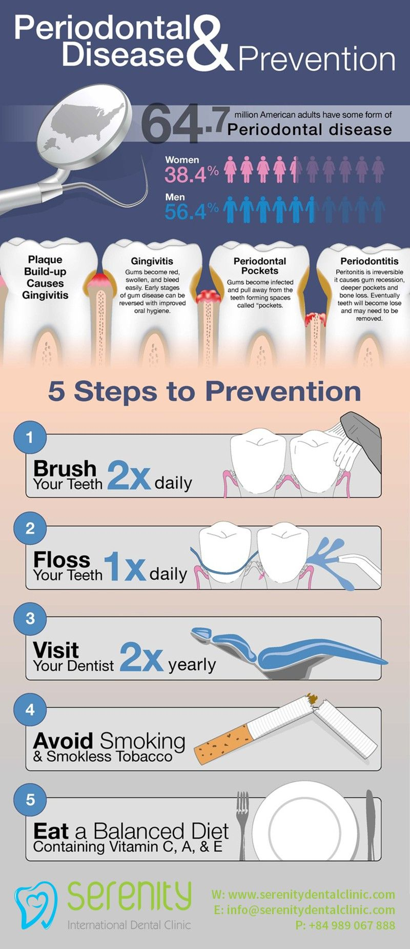 5 simple steps to prevent periodontal disease infographic