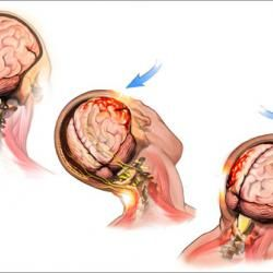Concussion Essential Oil For Essential Oil Uses Brain Injury