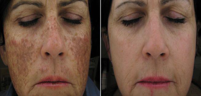 What Are Ipl Photofacial Treatments Google Search Ipl Photofacial Laser Facial Photofacial