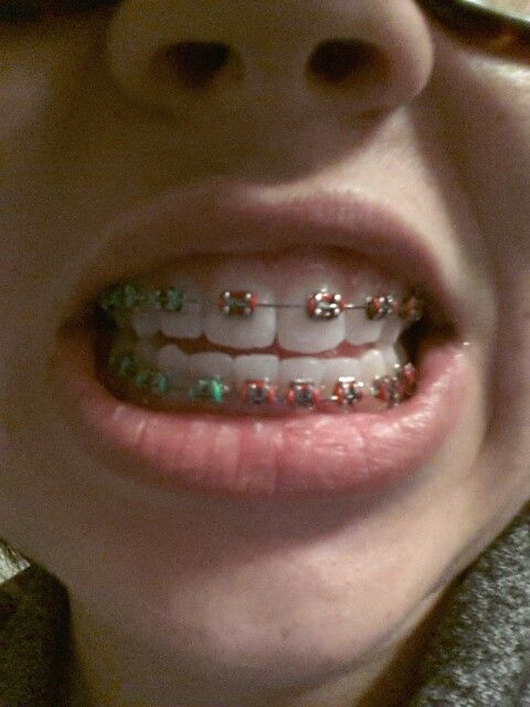 Christmas Braces Ideas.Not A Tattoo But Still Body Art To Me Braces Color Pattern