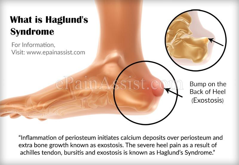 What Is Haglund S Syndrome Achilles Tendonitis Tendonitis