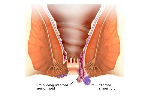 Are not hemmorhoids anus diagram photo obvious, you