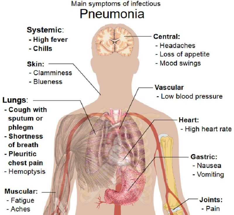 signs and symptoms of pneumonia | medical pins | pinterest | signs, Skeleton
