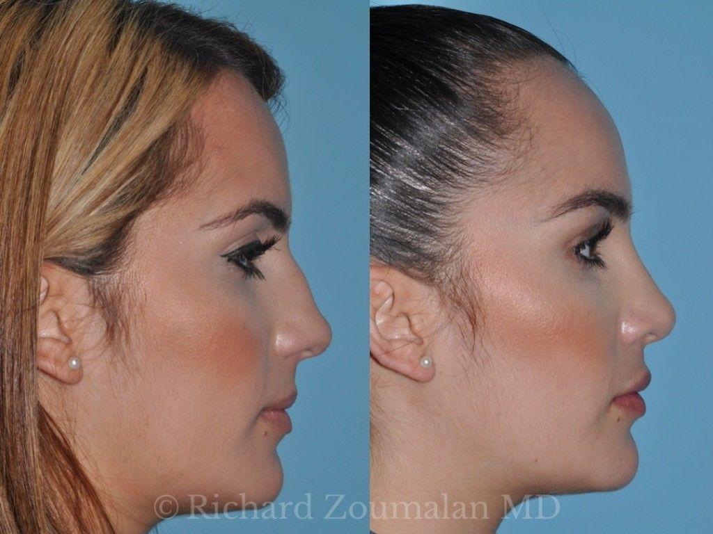 Image result for rhinoplasty (con imágenes) Rinoplastia