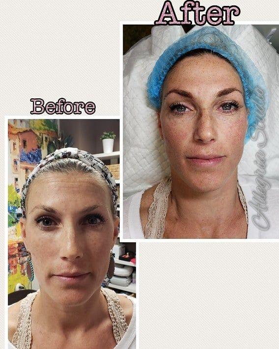 Chemotherapy Room Design: Saved Brows Today For This #beautiful Lady! @allegria