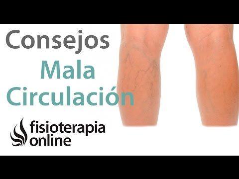 Tratamiento para varices en las piernas pdf