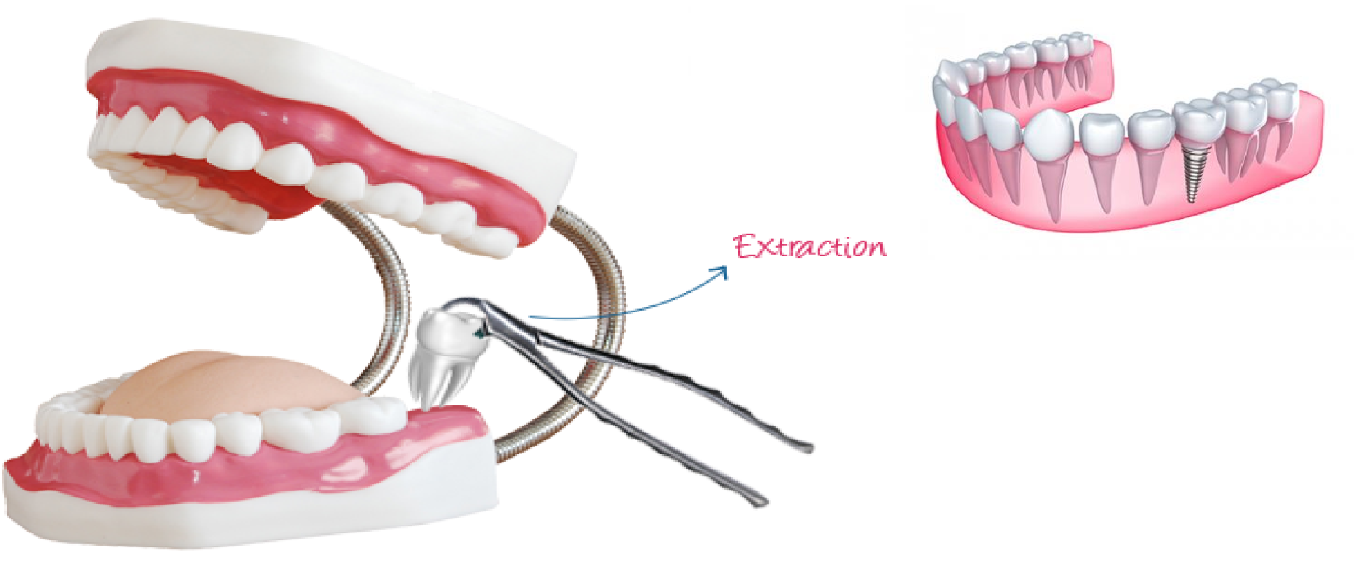 A Dental Extraction Also Referred To As Tooth Extraction Exodontia Exodontics Or Informally Tooth Pulli Dental Extraction Dental Hospital Pediatric Dental