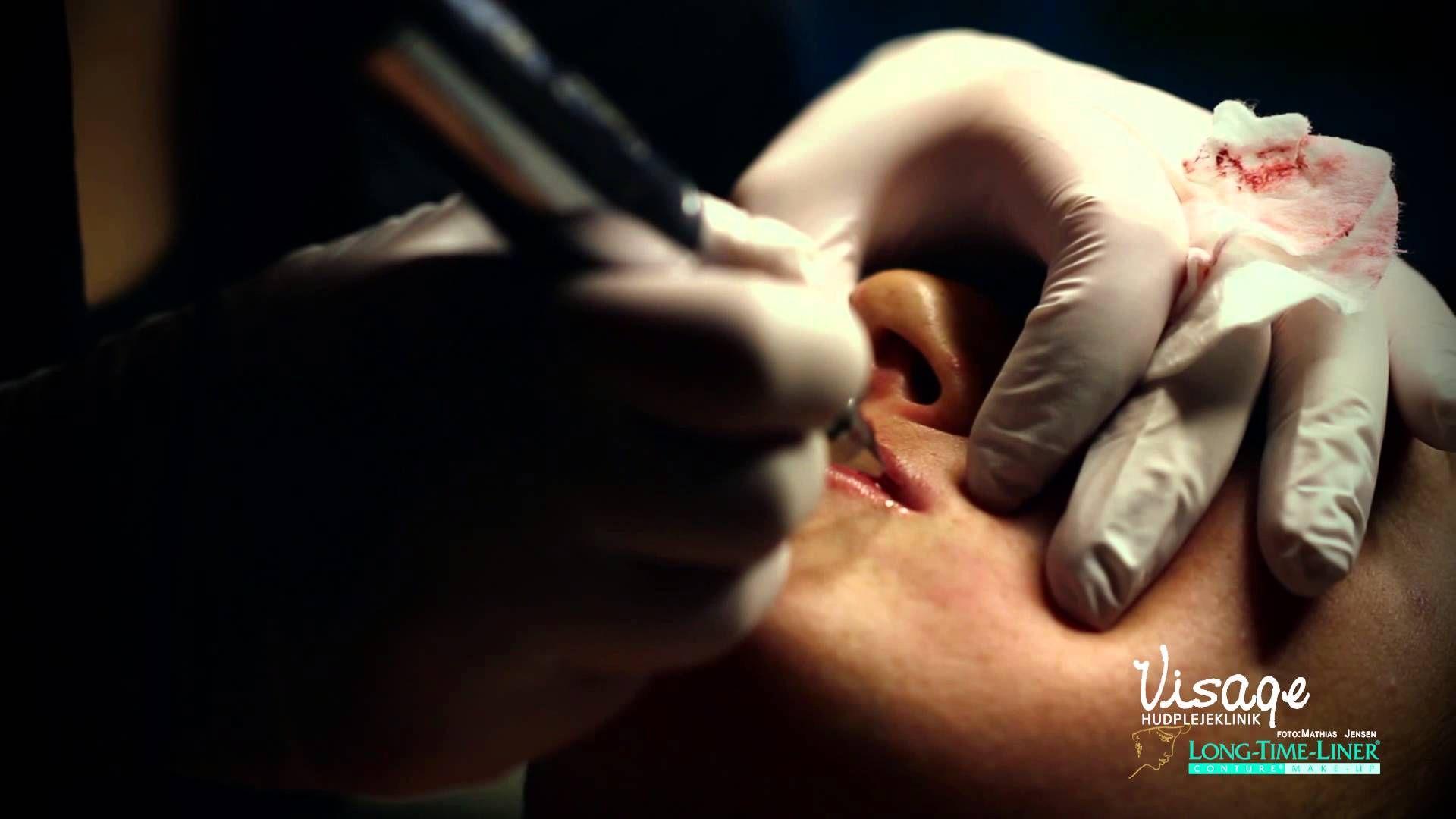 hvordan fjerner man single lashes