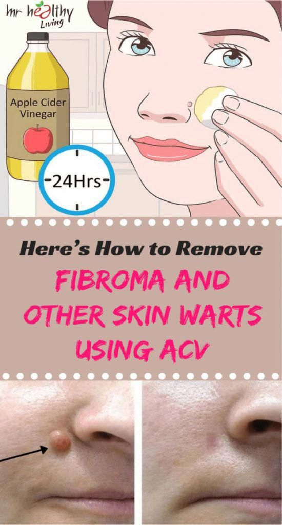 five Effortless Dwelling Treatments To obtain Rid Of Skin Warts #MolesWarts&SkinTagsRemoval #skintagremedy