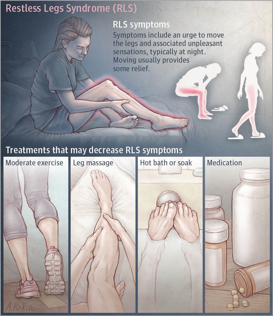 restless legs treatment