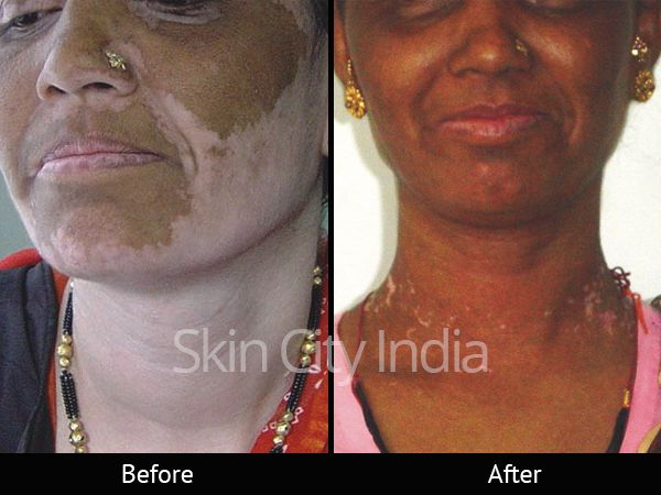 Vitiligo Clinic Vitiligo Treatment Vitiligo Skin Treatments