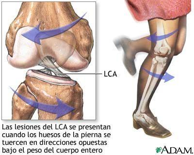 Es Una Ruptura O Estiramiento Excesivos Del Ligamento Cruzado Anterior Lca En La Ro Ligamento Cruzado Anterior Dolor En Articulaciones Anatomía De La Rodilla