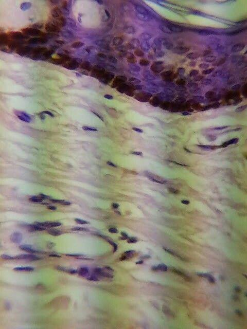 Skin under a microscope