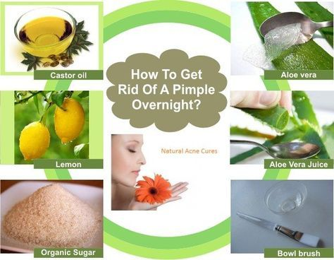 Natural Solutions That Get Rid of Pimples, Zits, Bumps