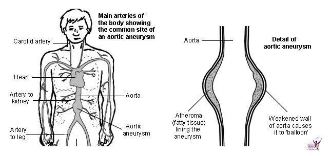 Ascending Aortic Aneurysm Aortic Aneurysm Survival Rate