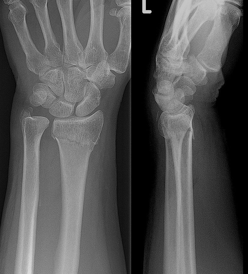 Colles Fracture On X Ray Muñeca Rota Imagenologia Competencias Basicas