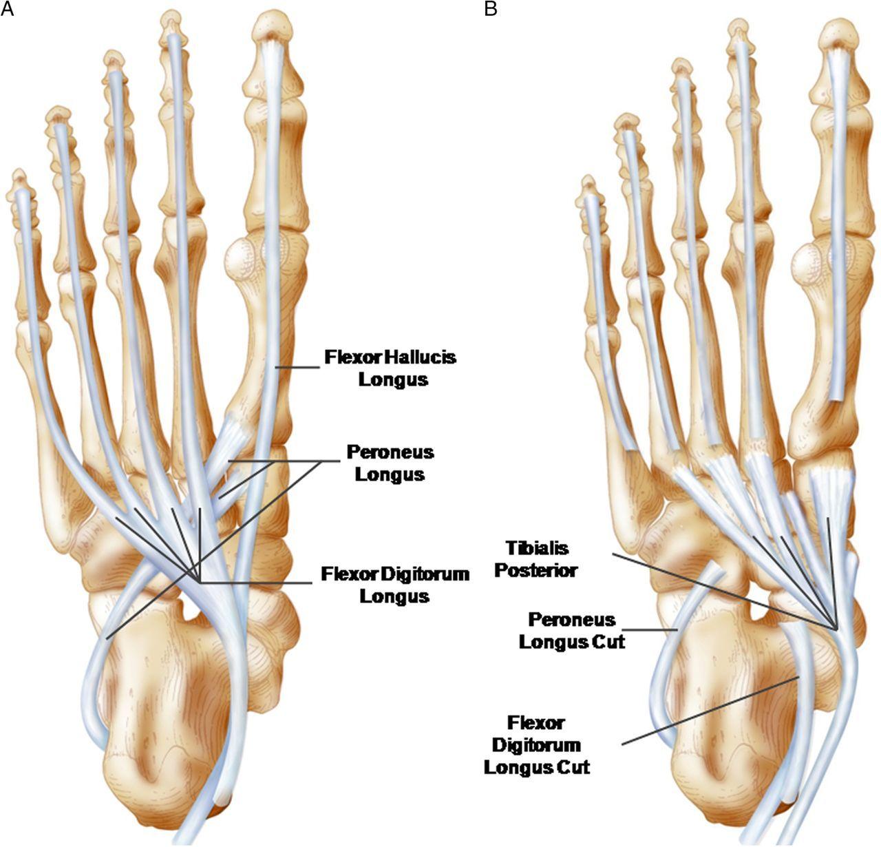 Inserción de los músculos extrínsecos del pie sobre la planta del ...