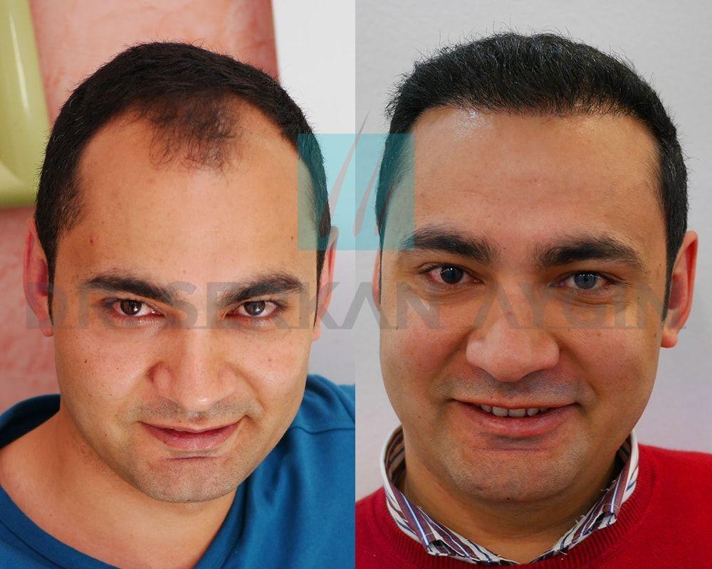 Hair Transplant Panosundaki Pin