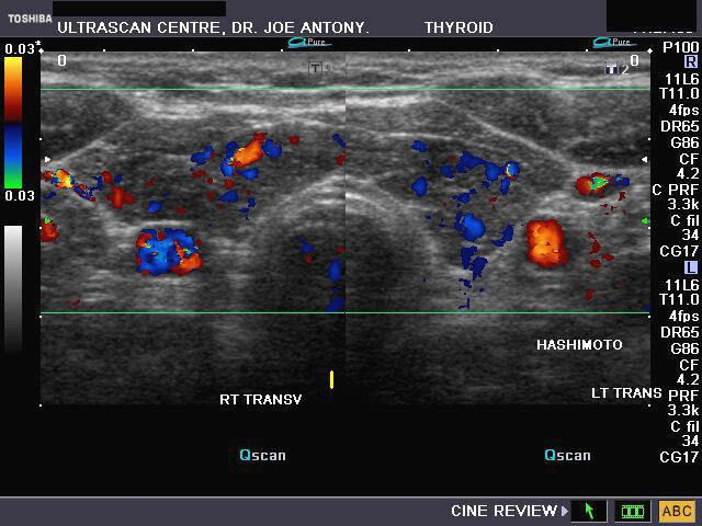70 Best Tirads Images In 2020 Ultrasound Thyroid Sonography