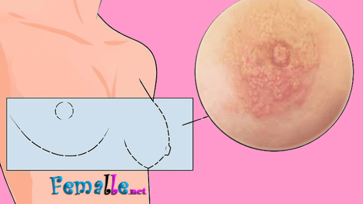 Pin On Breast Cancer Prevention And Treatment