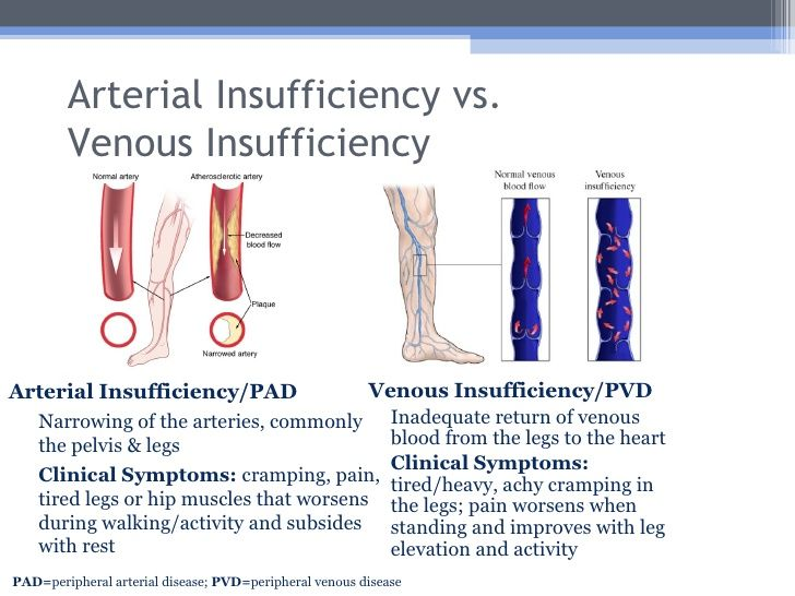 difference between venous insufficiency and arterial insufficiency ...