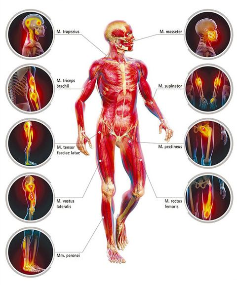 Help! I Struggle With IT Band, Tight Muscles and Trigger Points #RunBuzz