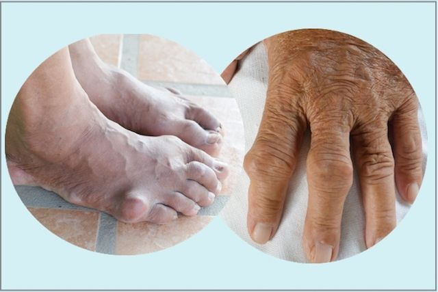 alimentos para enfermos de acido urico estudio acido urico persoans que alimentos comer para evitar la gota