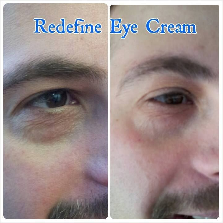 R F Multifunction Eye Cream Men S Before And After For More