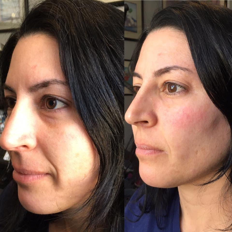 1 syringe of #Juvederm #Voluma in the cheeks   Before/Afters