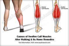 23+ Tightness in back of leg trends