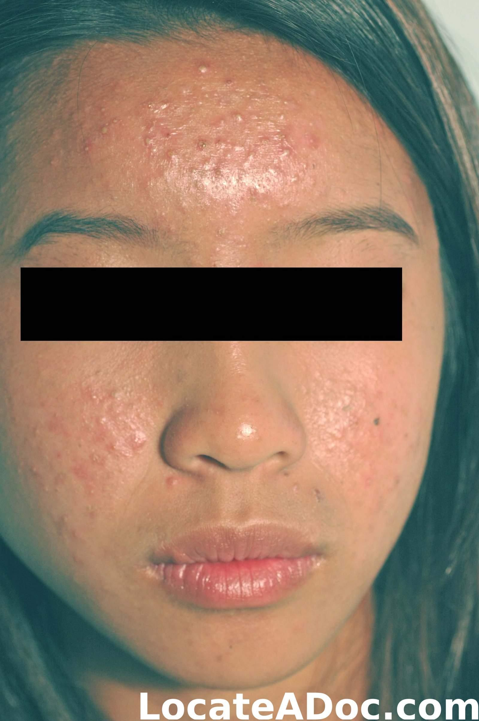 Why do many people have acne on the face? Causes and treatment methods 6