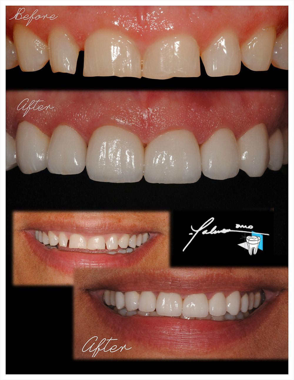 Smile Design Ellsworth Ideal Garden State Dental Design Ka50431