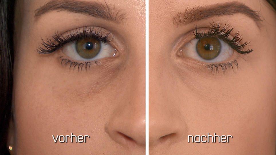 Wie Wird Man Augenringe Los