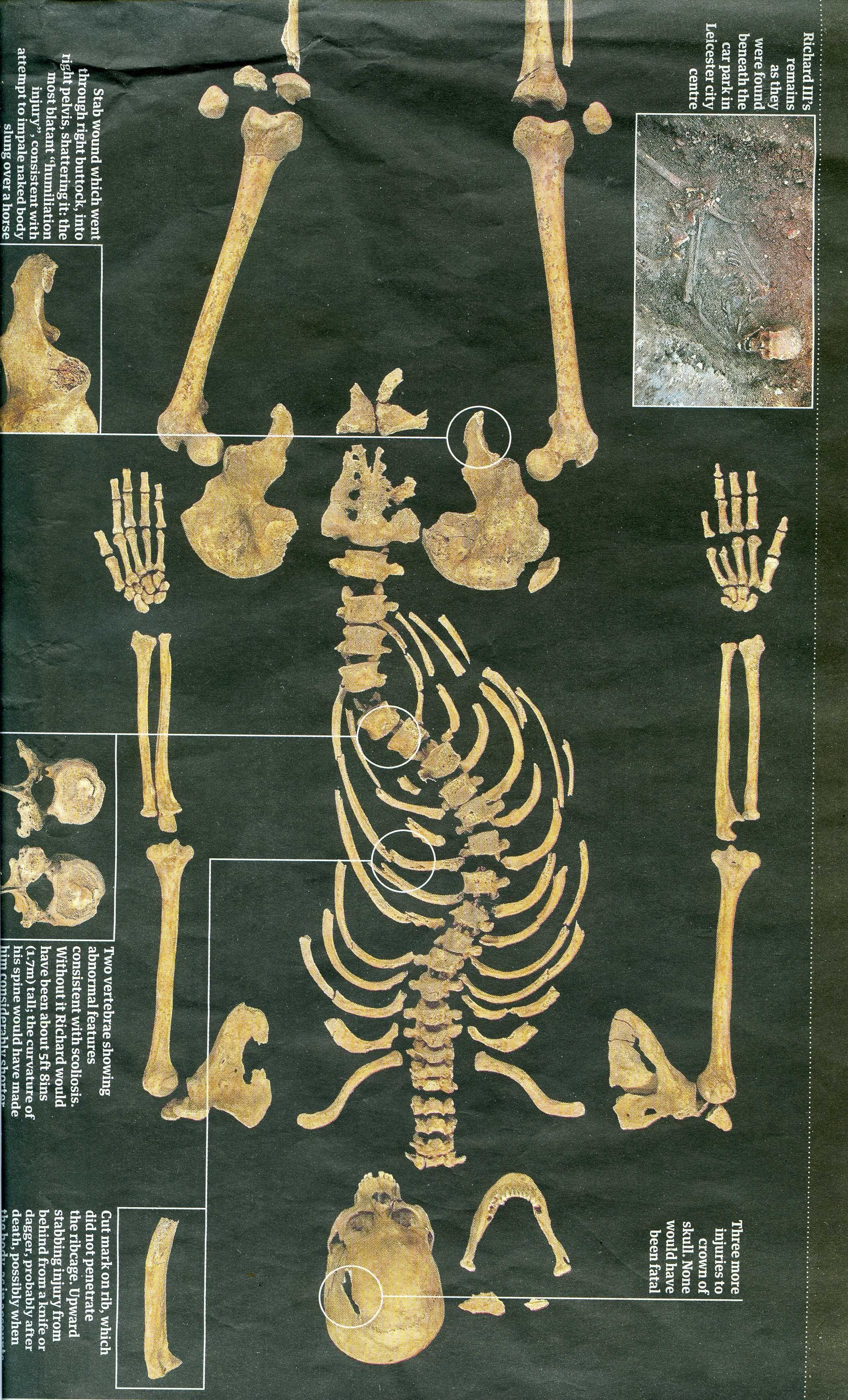 king richard iii skeleton plantagenent pinterest