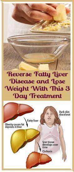 Yellow fat burning pills