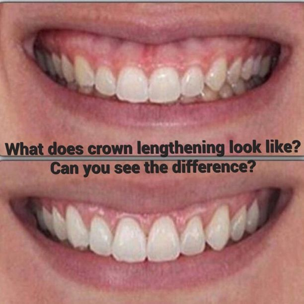 Crown Lengthening What A Difference A Little Bit Of Extra Length