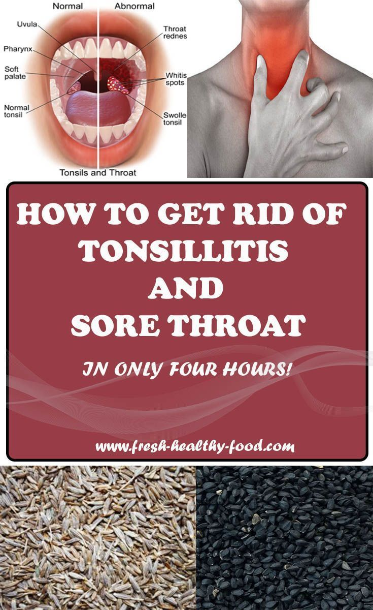 Constant Pain In The Area Of Throat May Mean That You Are Either