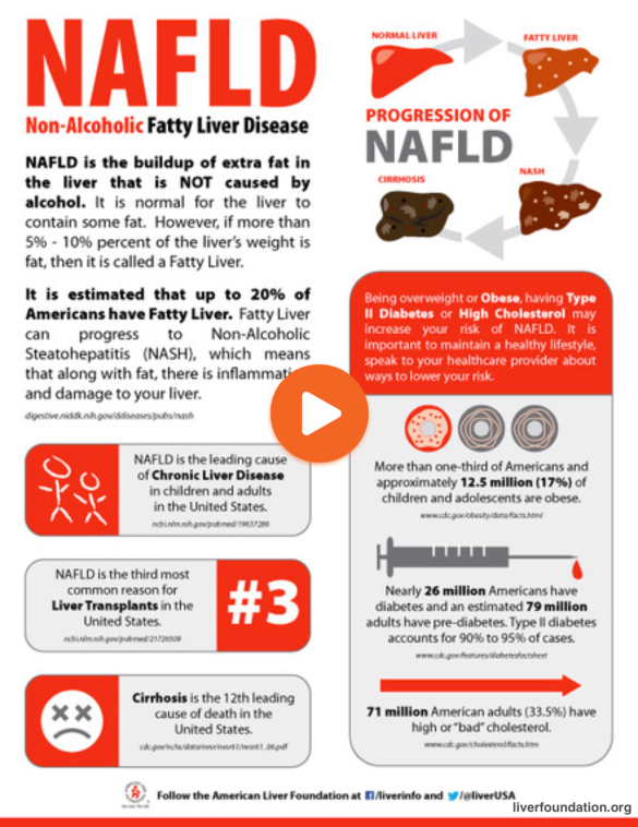 how to know if you have nafld