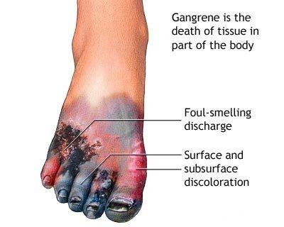 diabetes gangrena bacteria