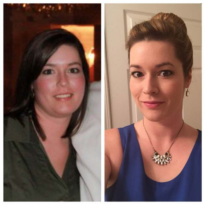 Hypothyroid In Photos Before And After Thyroid Treatment