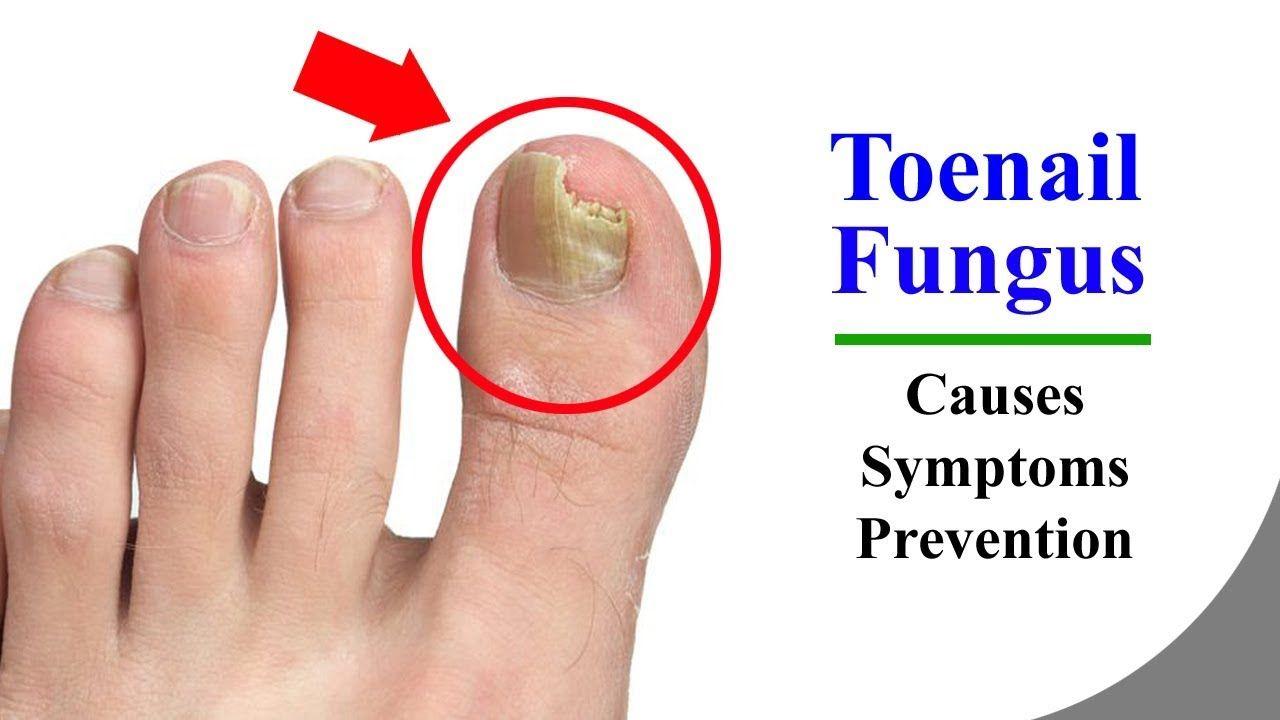 Toenail Fungus – Main Causes and Nail Fungus Symptoms for the Toe ...