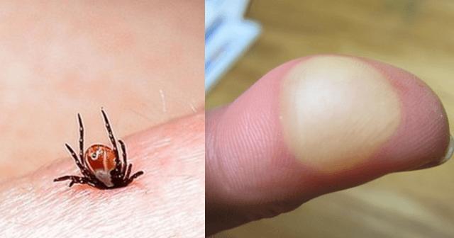 ひどい 虫 刺され 保育園での蚊に刺されがひどい!どうしたらいいの?おすすめの虫よけ剤は?