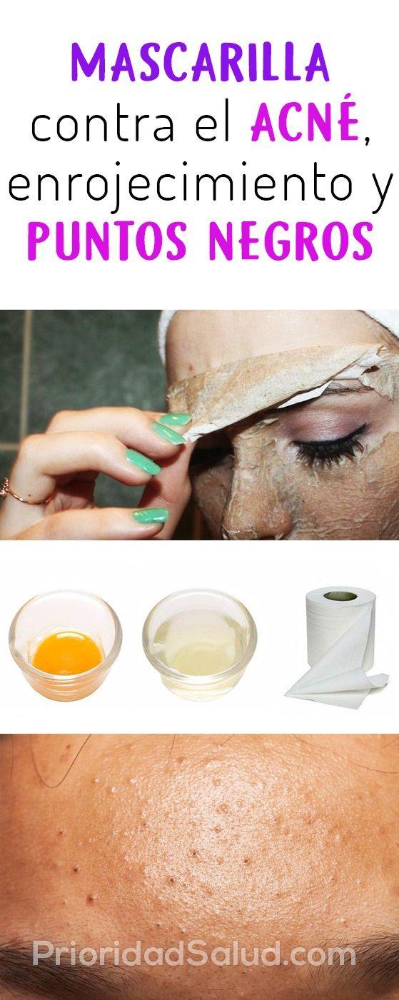 Remedio Natural Para Granitos En La Cara