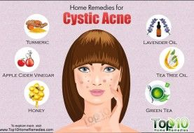 Home Remedies For Open Pores Cystic Acne Types Of Acne Cystic