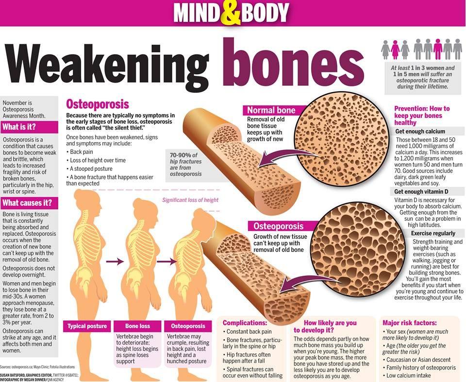 40++ Peak bone mass and osteoporosis viral